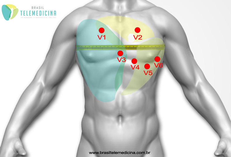 ECG-Eletrodos-BrasilTelemedicina