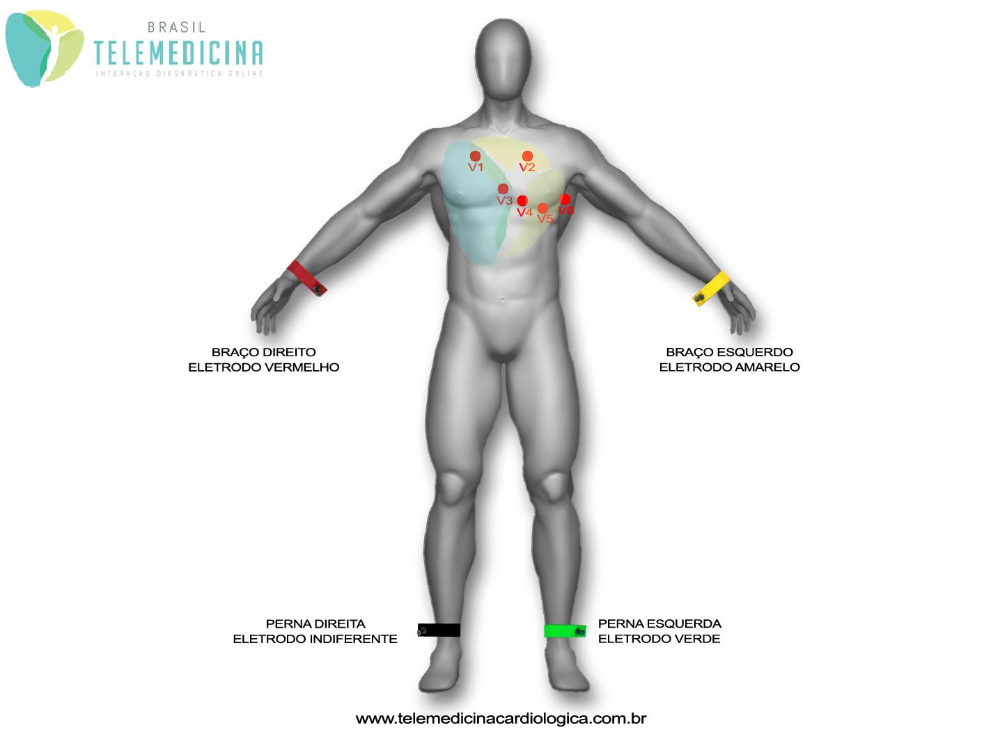 ECG-Eletrodos02 copia cópia